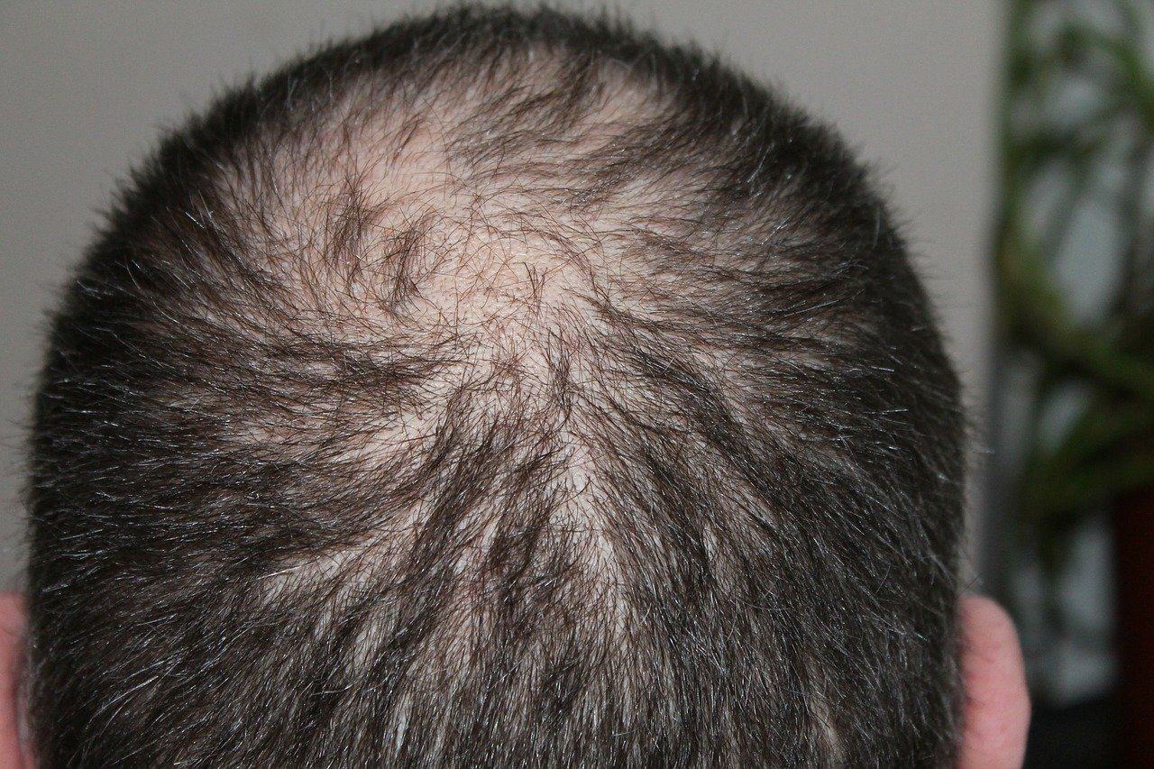hair loss men treatment