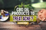 Use CBD Oil Products to Treat Acne – Top Reasons People Use CBD Oil
