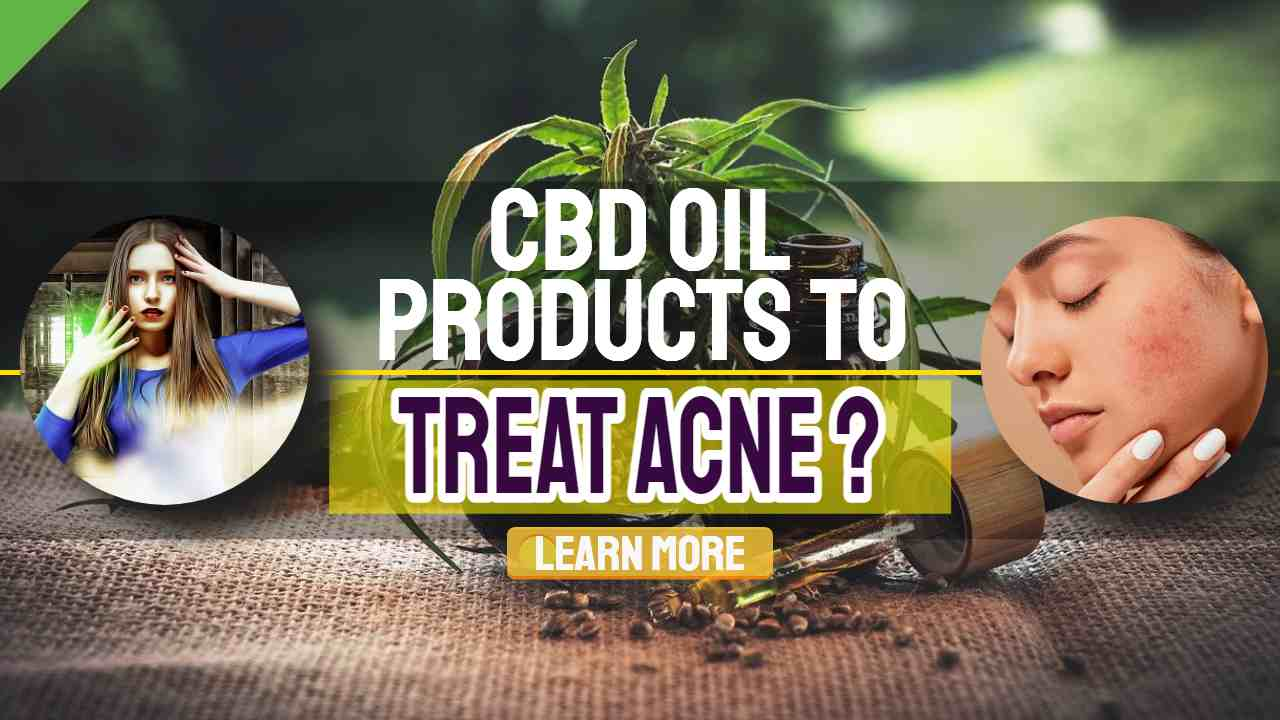 "Image text: ""CBD Oil Products to Treat Acne""."